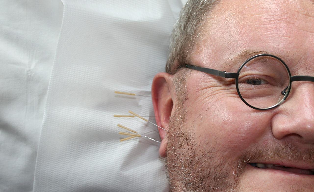 Curso acupuntura Vigo:  Formación para profesionales.